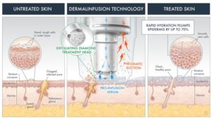 dermalinfusion_Master-768x432