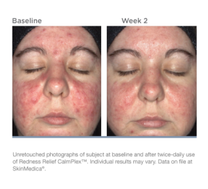 redness-relief-calmplex-beforeafter-01