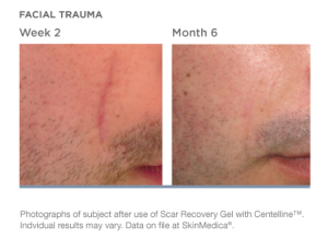 scar-recovery-gel-with-centelline-beforeafter-02