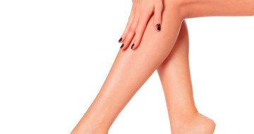 Sclerotherapy - Spider Vein Injections