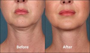 Kybella.before.after_.stamford.ct_.dermatologist.ctskindoc