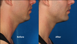 male_left-side_kybella_double-chin_stamford_ct_dermatologst