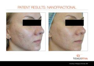 acne scars-fitz1 b+a