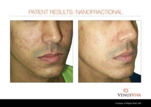 acne scars-fitz3 b+a