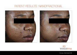 acne scars-fitzV b+a