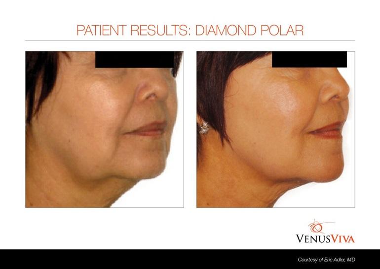 Venus Diamond Polar Facial Skin Tightening - Toronto Cosmetic
