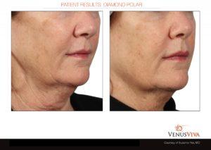 skin tightening2 b+a