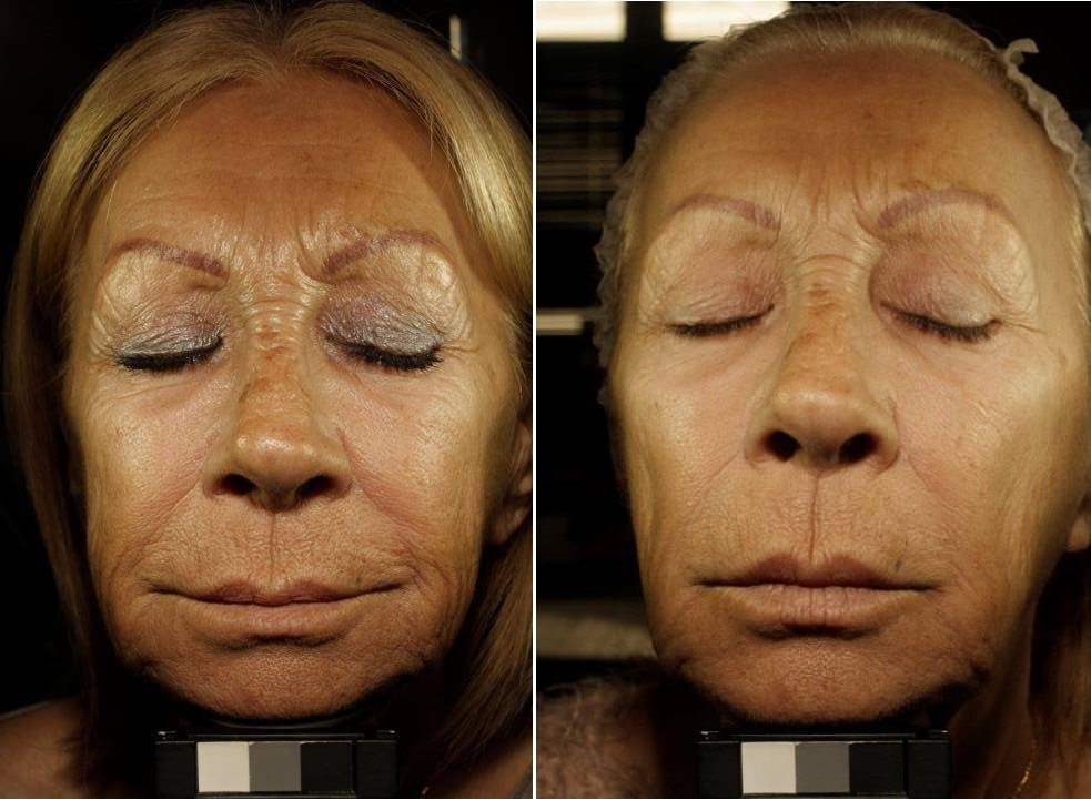 Face-before + after