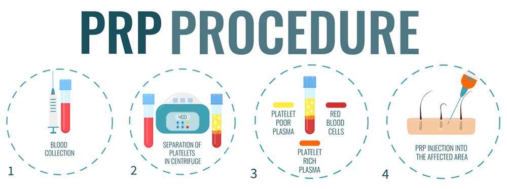 WCO-prp-procedure